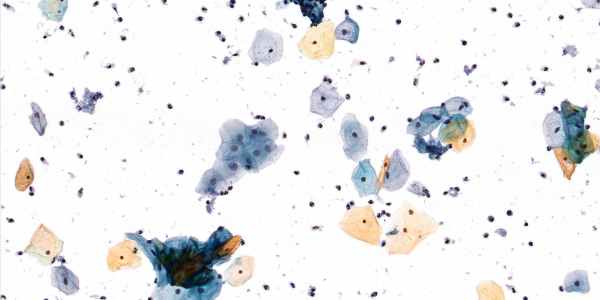Zoom pap smear cells with Thin Layer Technology